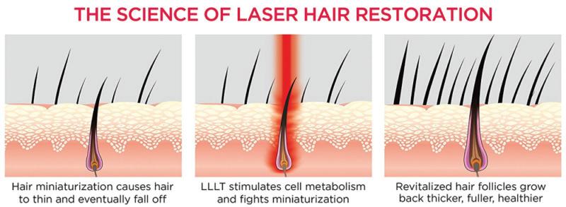 BIOLIGHT - The Science of Laser Light Hair Restoration